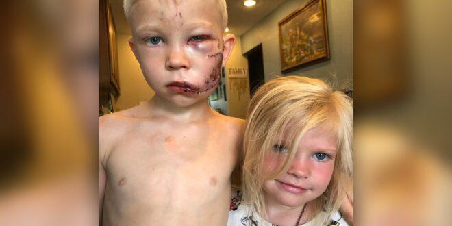 """El niño héroe que salvó a su hermana del ataque de un perro: """"Si alguien debía morir, tenía que ser yo"""""""